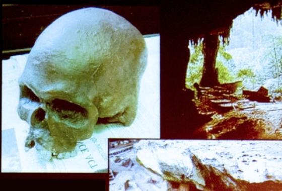 anthropology image skulls x-rays